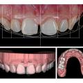 Dijital Smile Design (Dijital Gülüş Tasarımı)